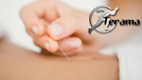 Bono de 3 o 6 sesiones de acupuntura para bajar peso + Pautas de alimentación