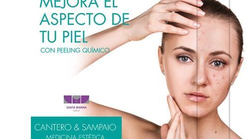 Peeling médico facial