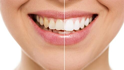 Limpieza dental + blanqueamiento LED