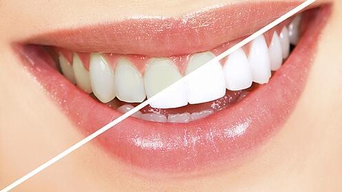 Blanqueamiento dental con LED + limpieza